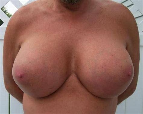 Man wants to grow female breast be transgender jpg 550x439